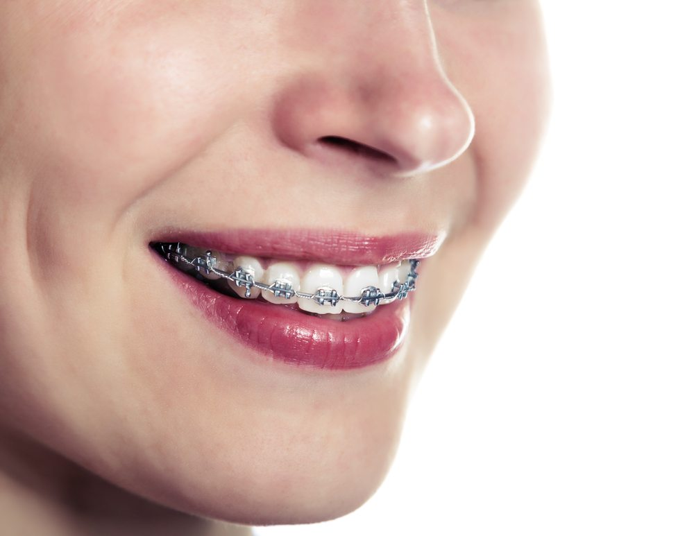 Orthodontics San Antonio Dentist City Base Dental Care